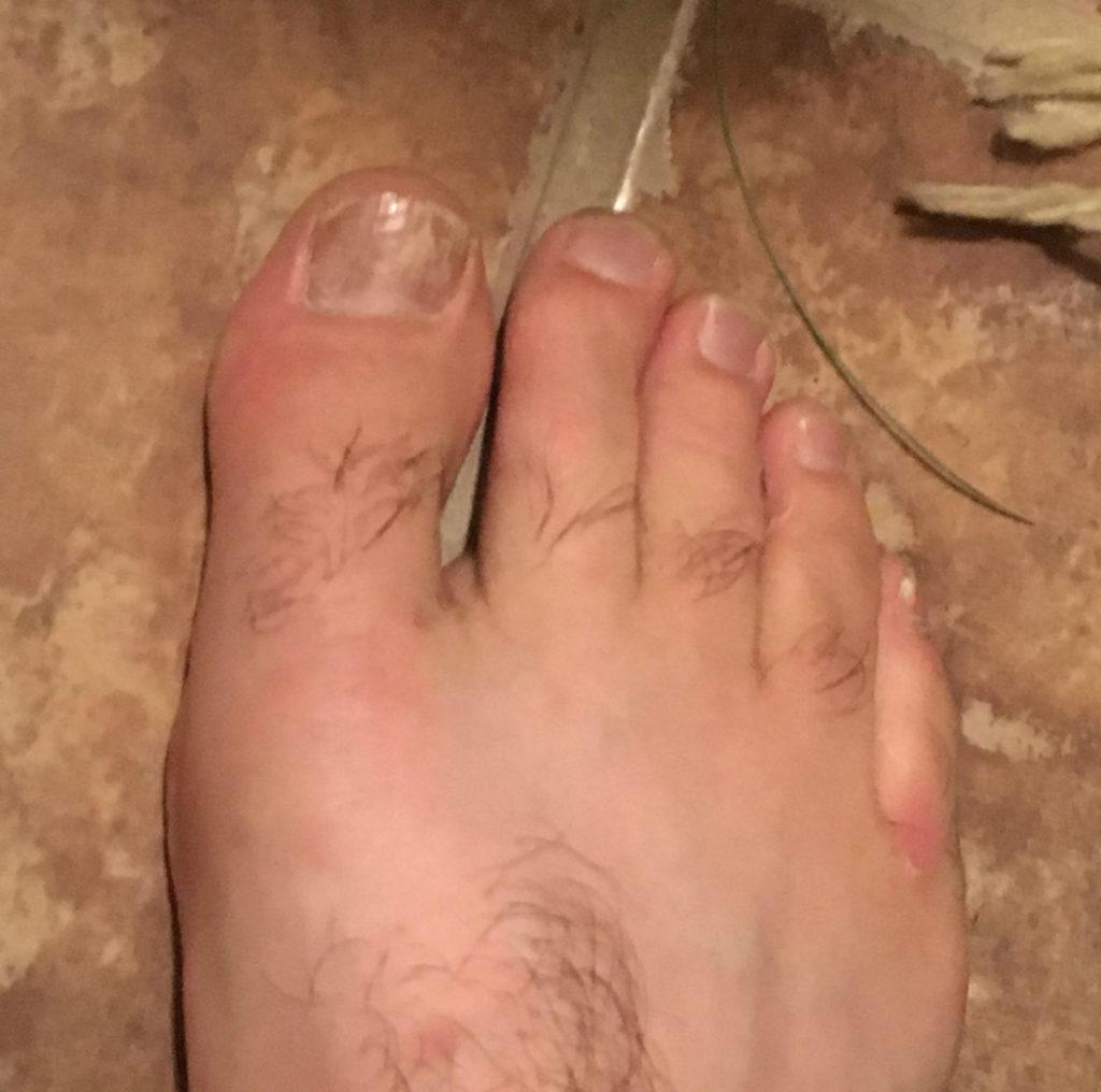 athletes foot on hand