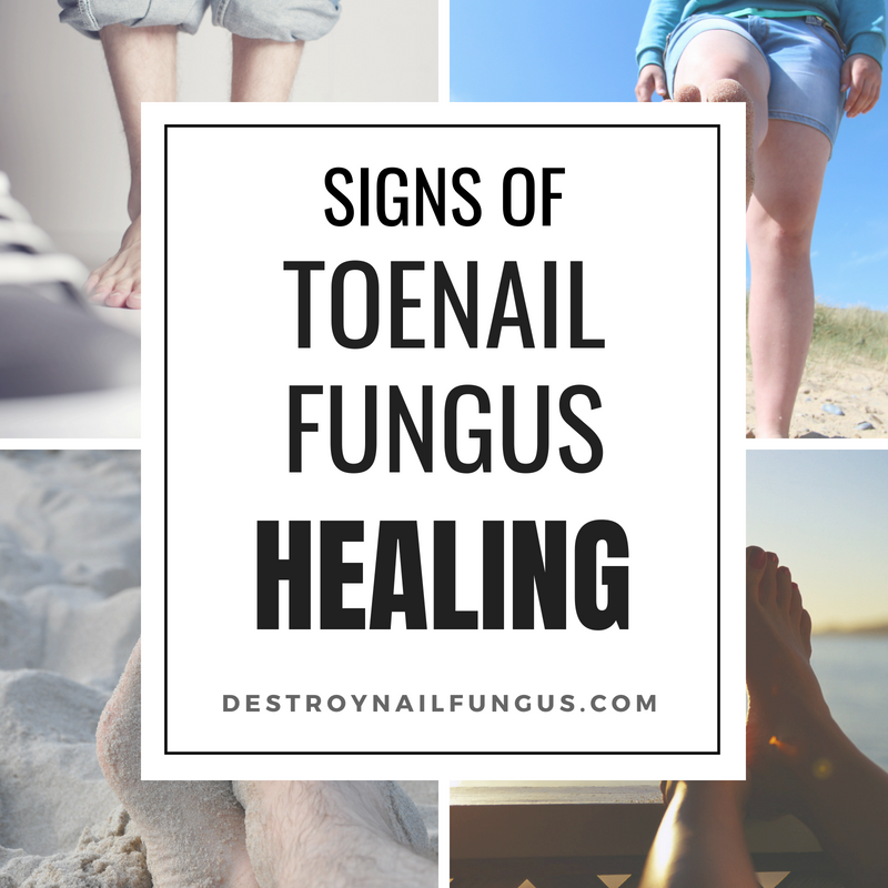 signs of toenail fungus healing