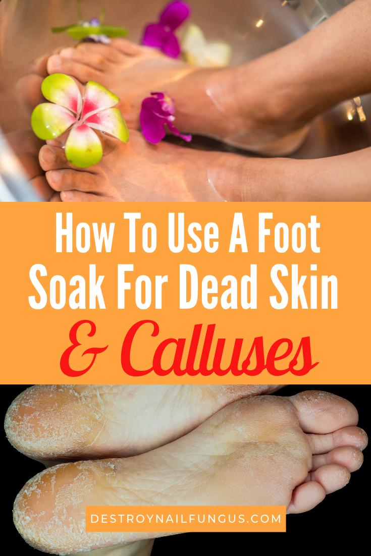 foot soak to remove dead skin and calluses