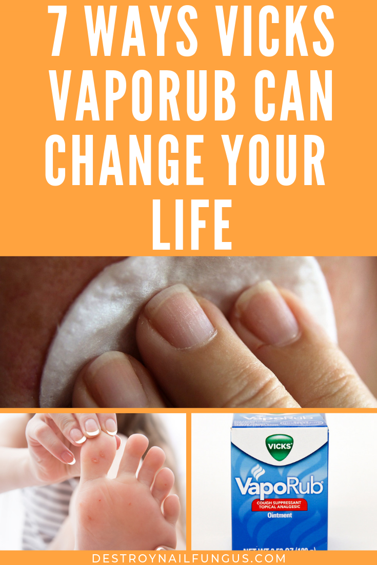 vicks vaporub amazing hacks