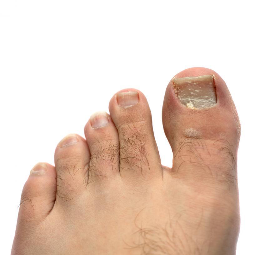 clove oil for nail fungus