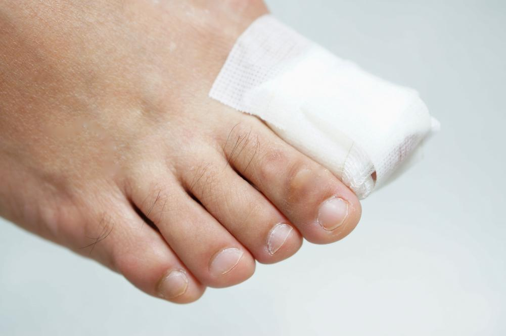 Foot with a bandage on the toe