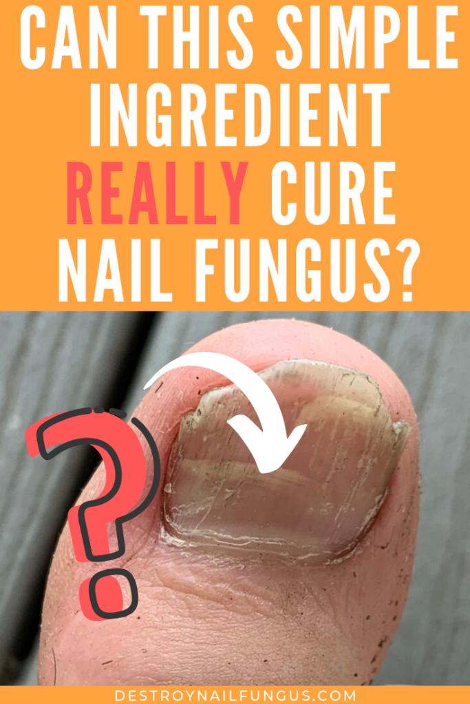 baking soda nail fungus