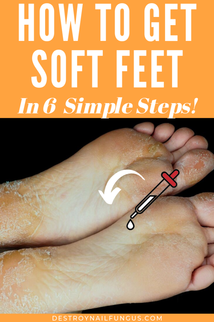 how to soften feet overnight