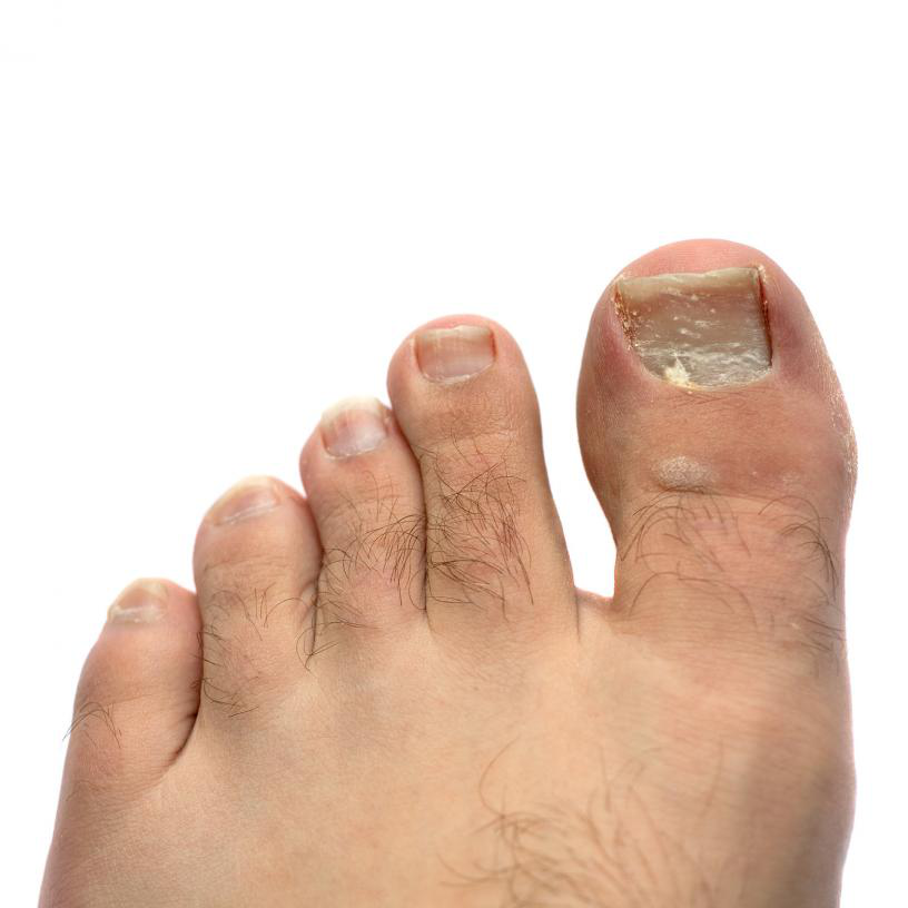 home remedies white spots on toenails