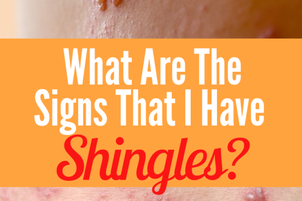 signs that you have shingles