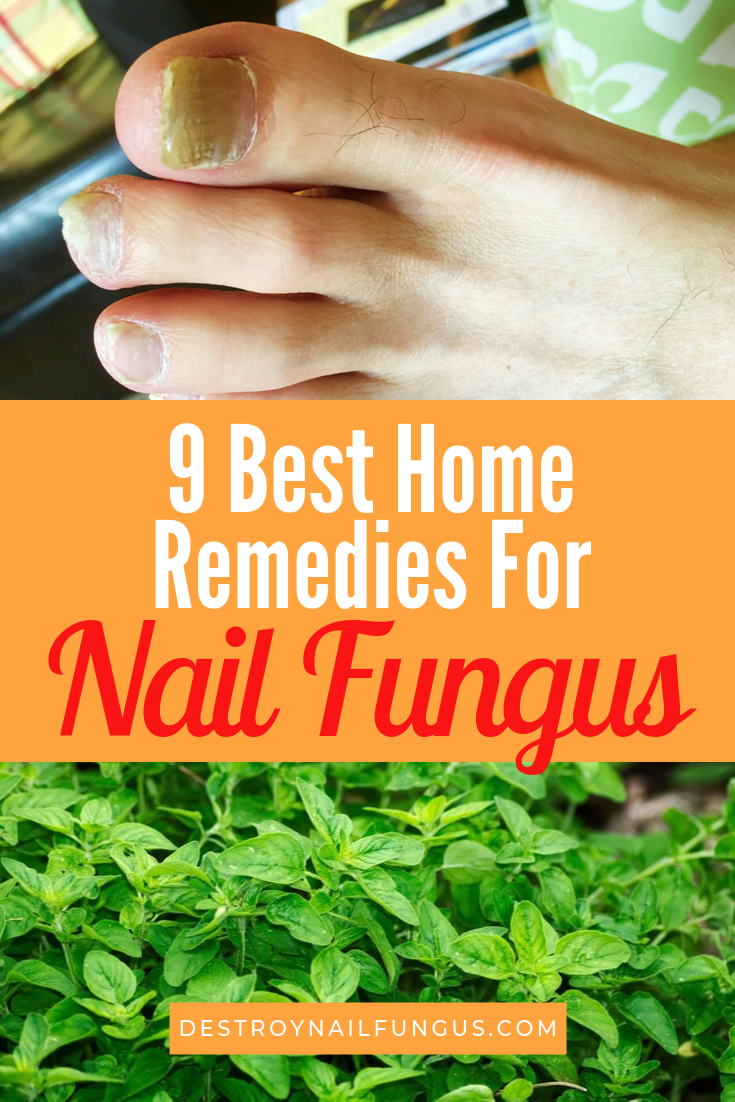 best home remedies for nail fungus cure