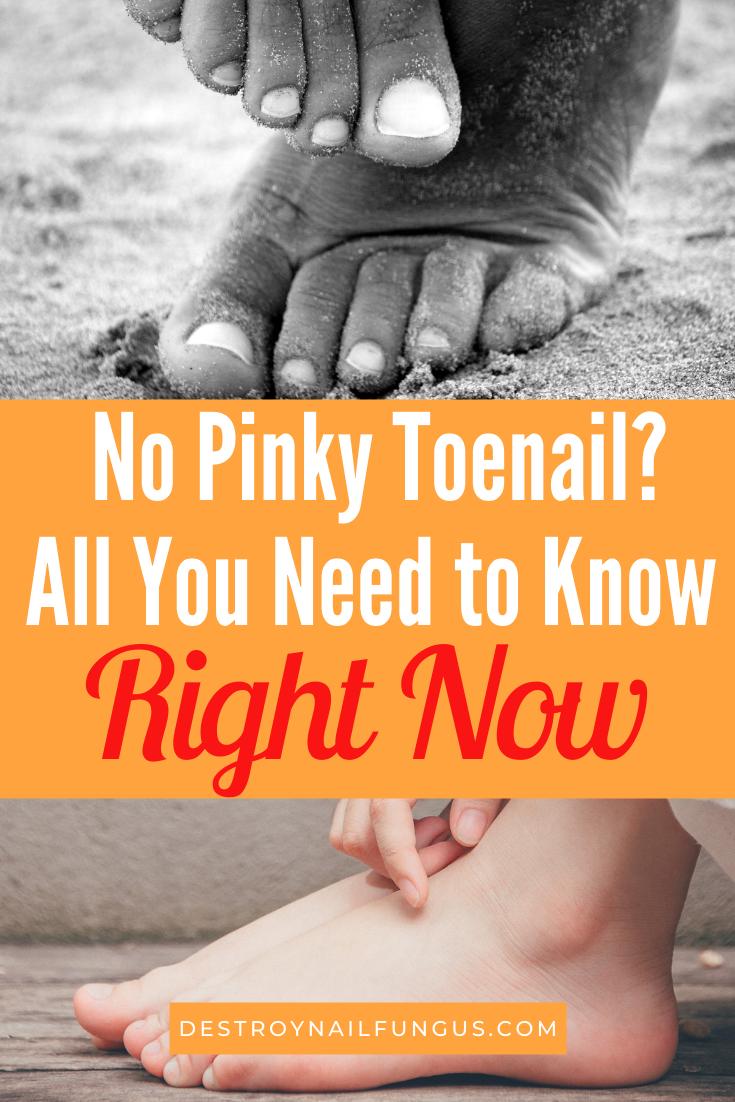 no pinky toenail