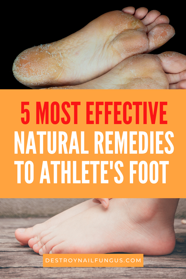 how to get rid of athletes foot safely and effectively