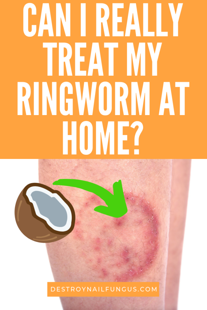 can i really treat ringworm at home
