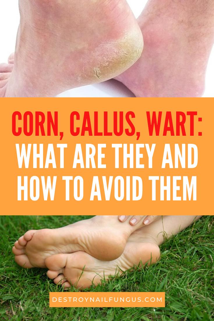 Corn versus callus versus wart