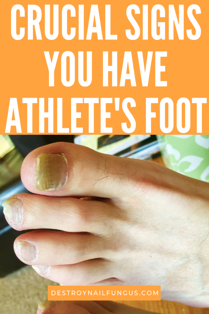 signs you have athlete's foot