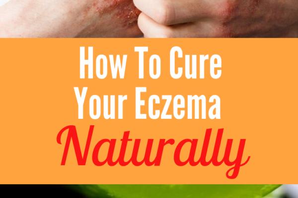 how to treat eczema with aloe vera