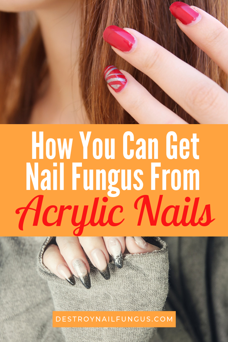 acrylic nails and nail fungus