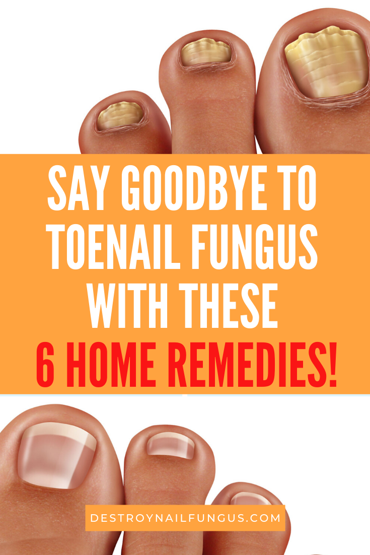 embarrassed to get a pedicure fungus