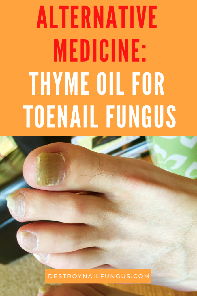 thyme oil for toenail fungus