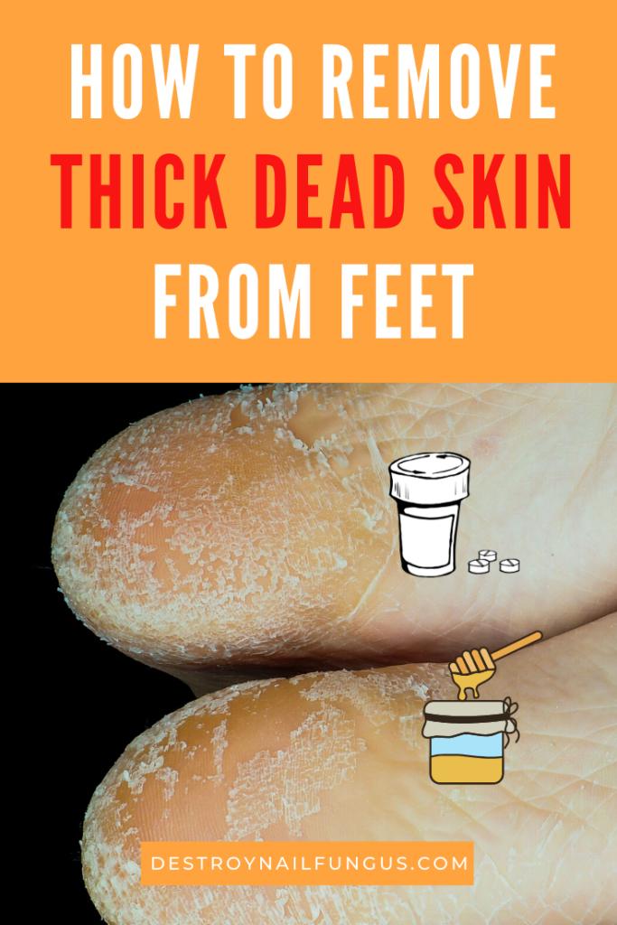 diy foot peel dead skin