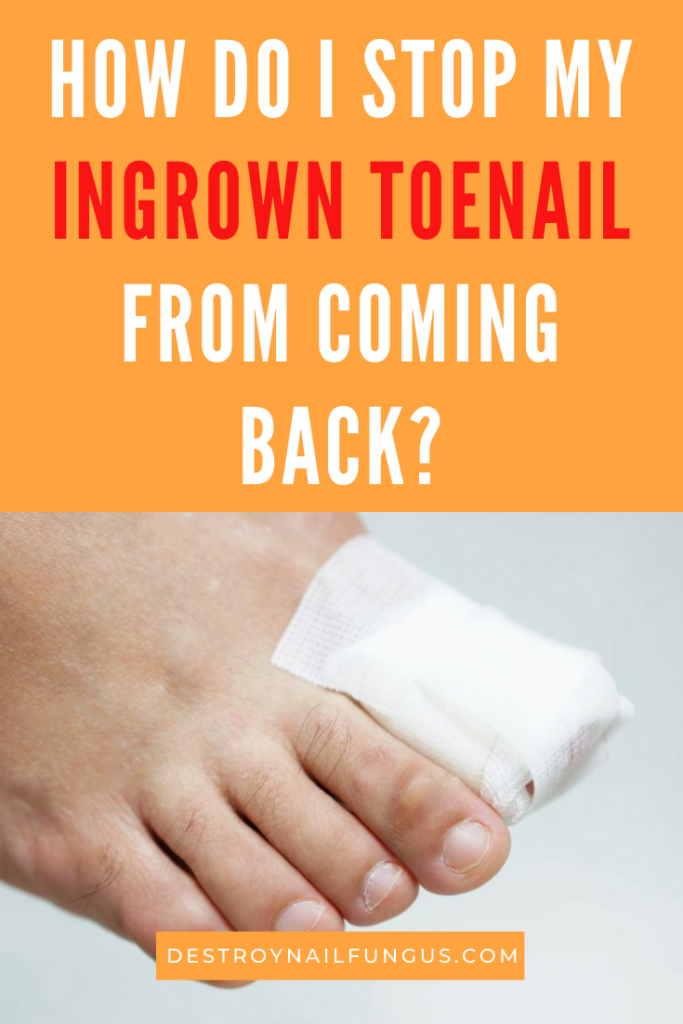 are ingrown toenails contagious
