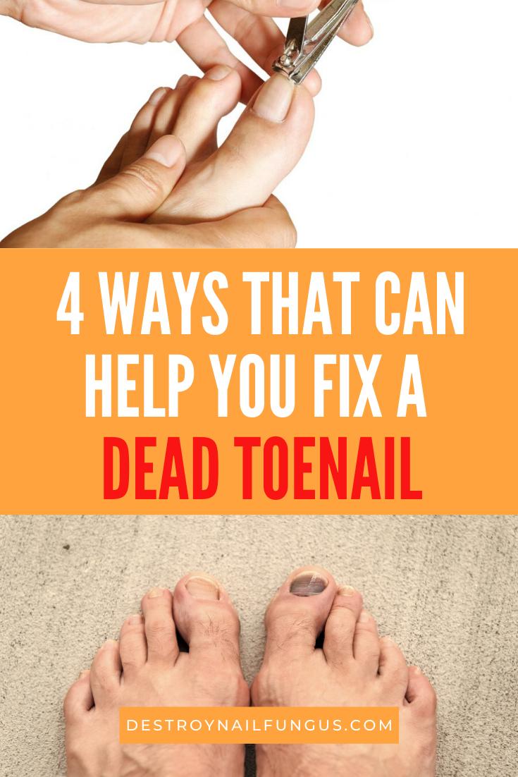 how to fix a dead toenail