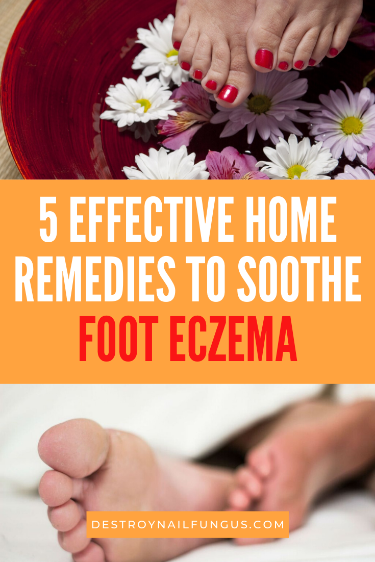 foot soak for eczema