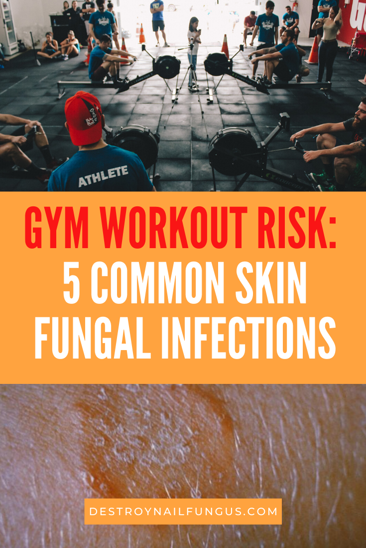fungus from gym