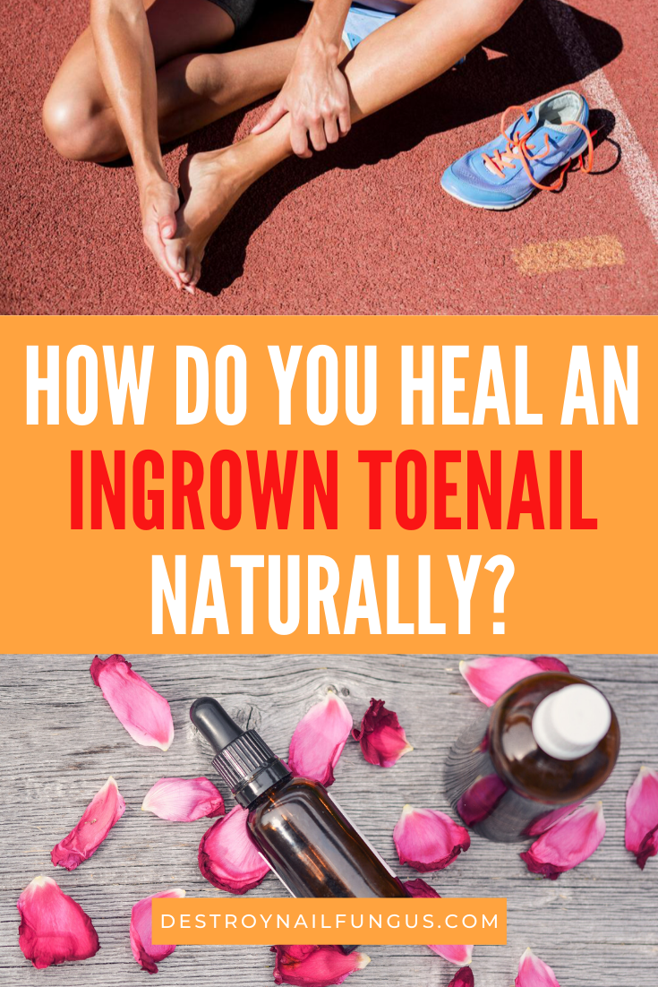 ingrown toenails and essential oils