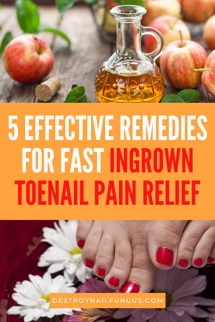 ingrown toenail pain relief fast