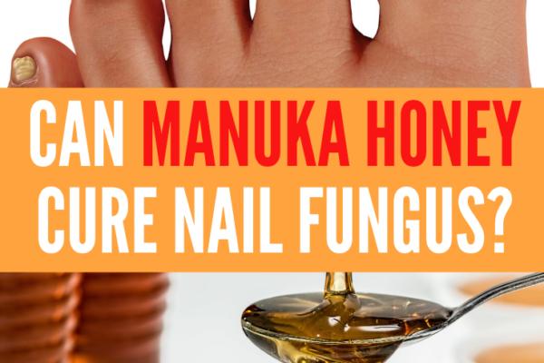 manuka honey for nail fungus