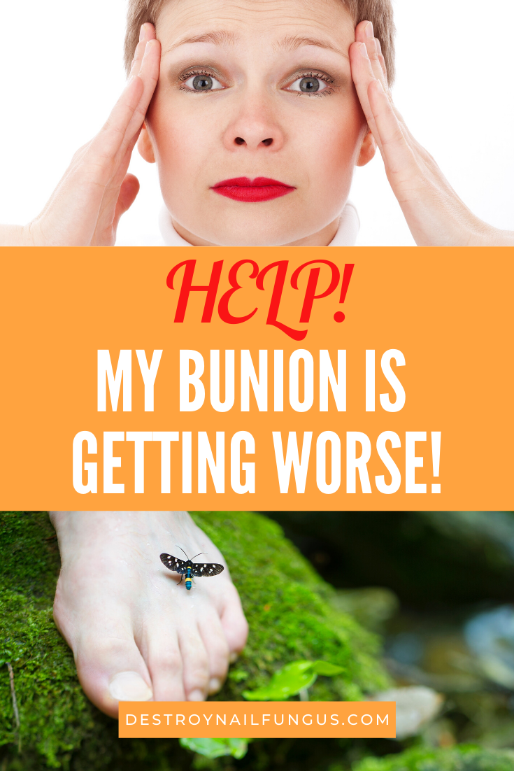 can bunions be reversed