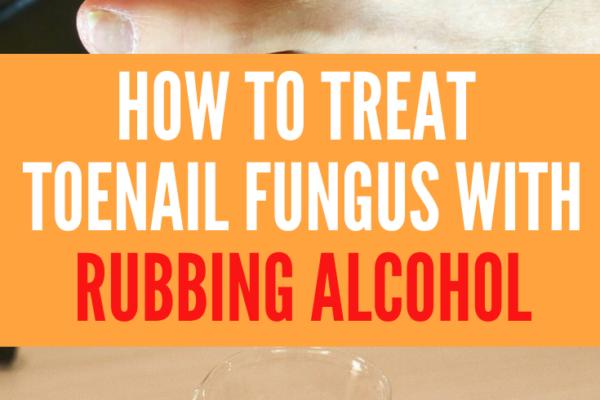 rubbing alcohol toenail fungus