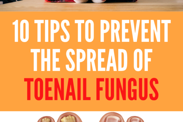 how to prevent toenail fungus from spreading to family