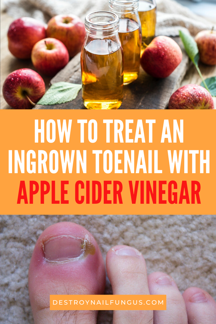 ingrown toenail apple cider vinegar