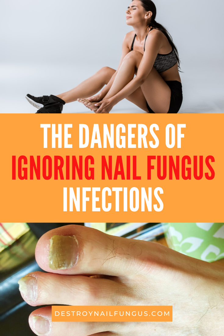 can nail fungus heal on its own