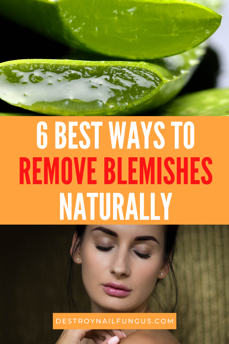 how to get rid of blemishes on your face