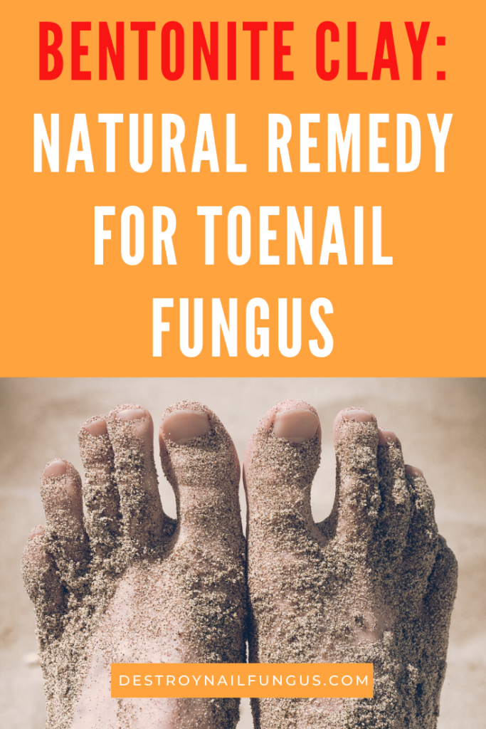 bentonite clay toenail fungus