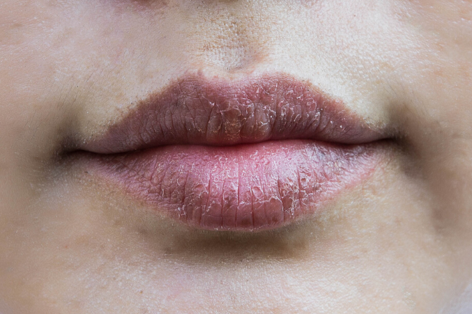 best essential oils for chapped lips