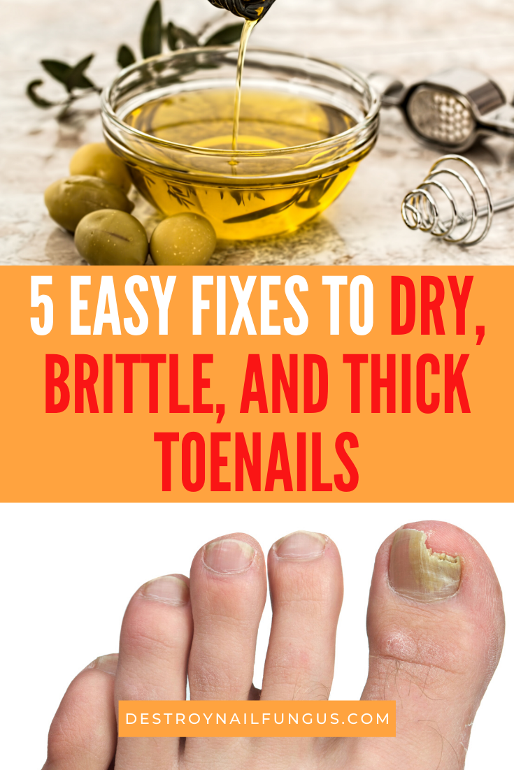 how to get rid of dry toenails