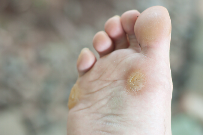 vicks vaporub for plantar warts