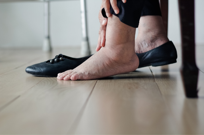 how to treat swollen ankles