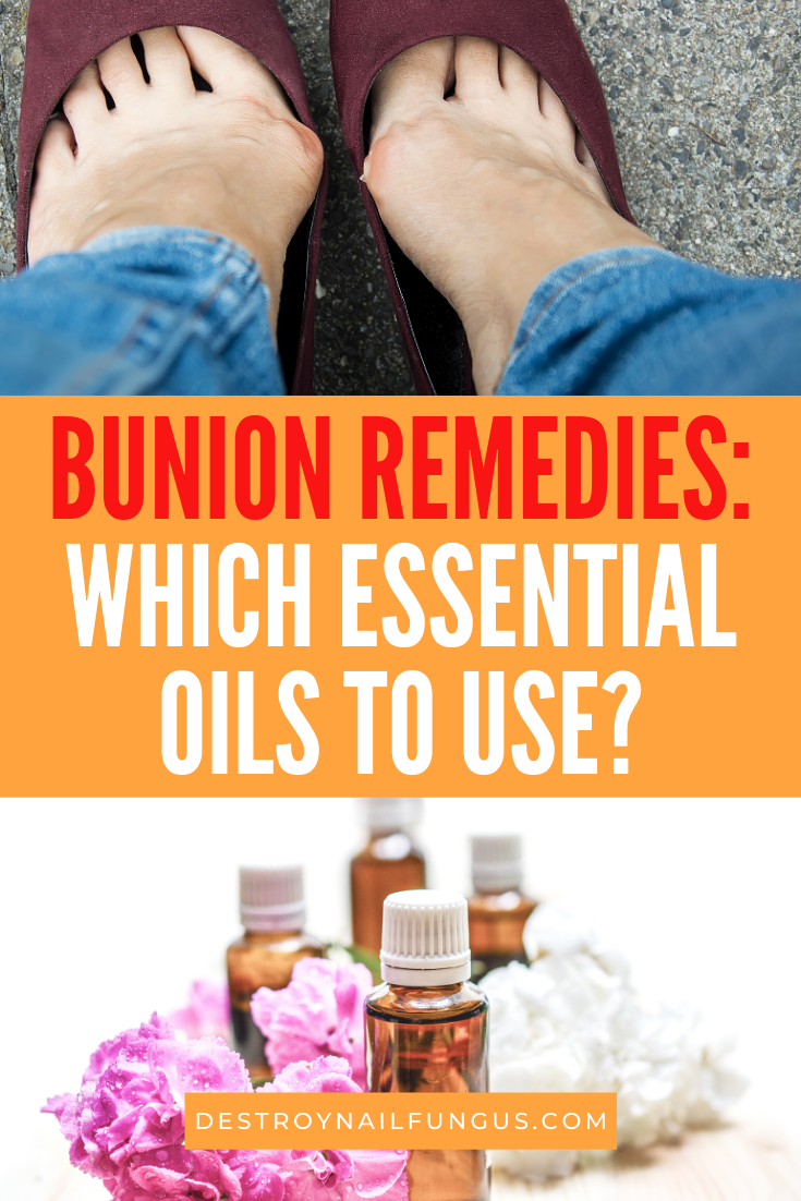 bunion remedies essential oils