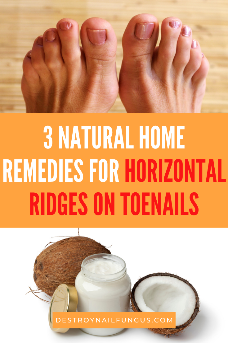 horizontal ridges on toenails