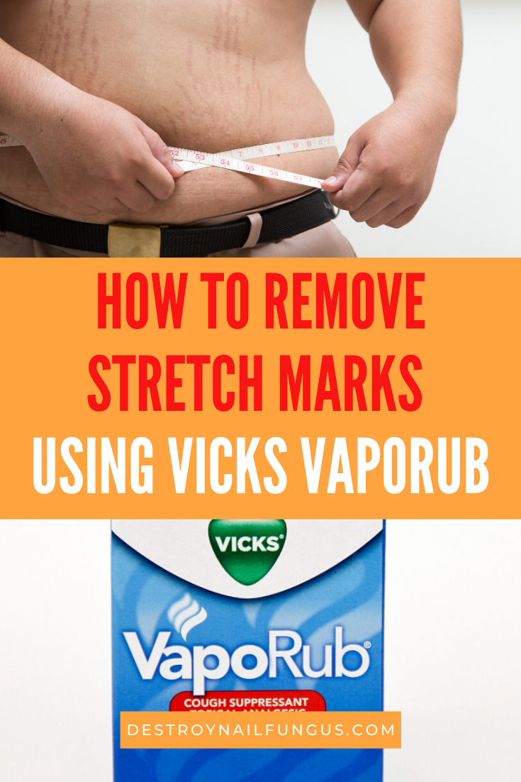 vicks vaporub for stretch marks