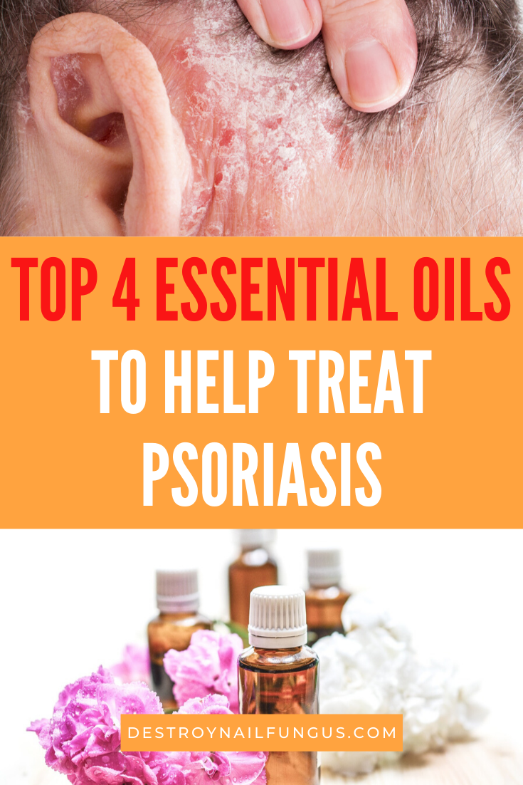 psoriasis remedies essential oils