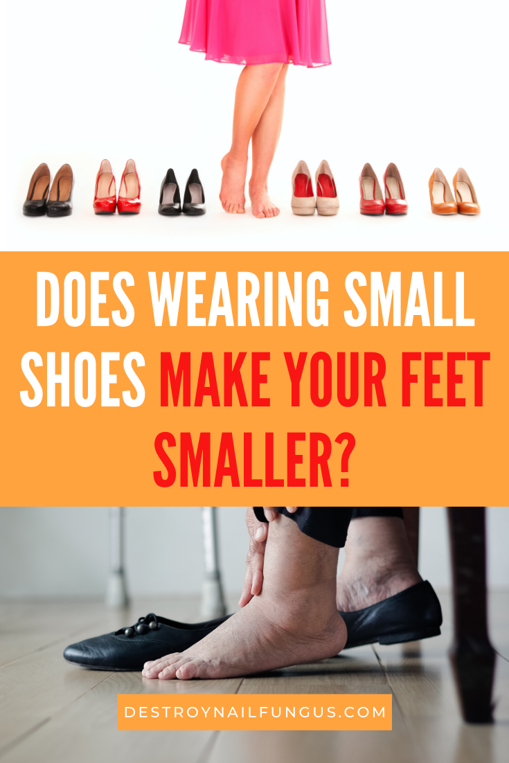 Can Your Feet Shrink If You Wear Small