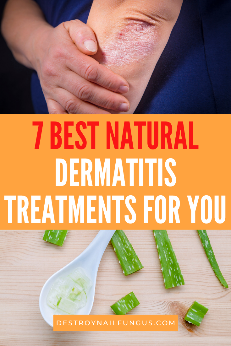 dermatitis remedies natural treatments