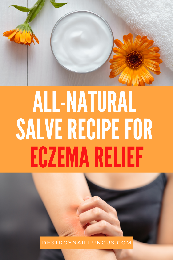 diy salve for eczema