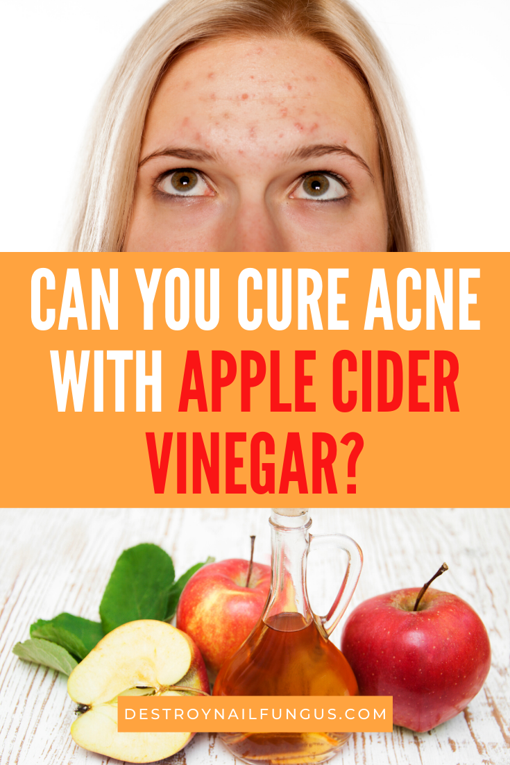 does apple cider vinegar help acne