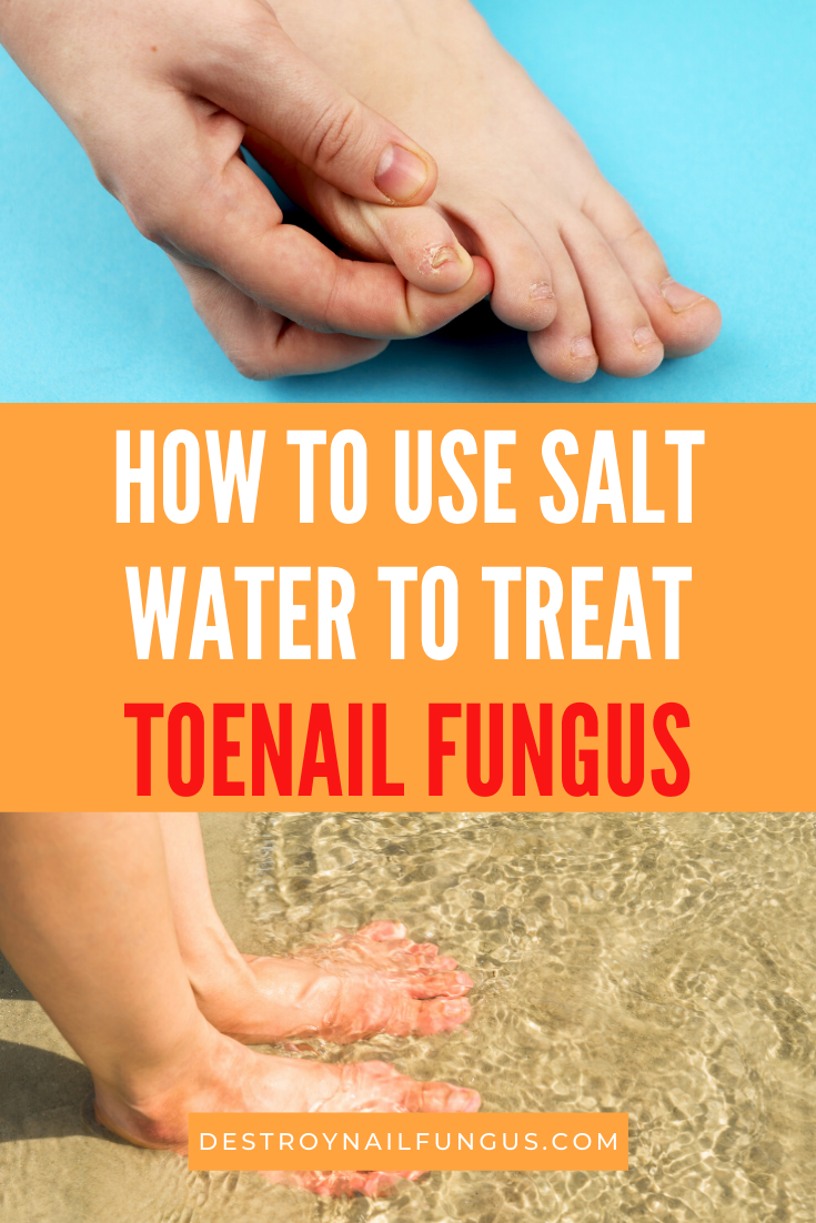 does ocean water kill toenail fungus