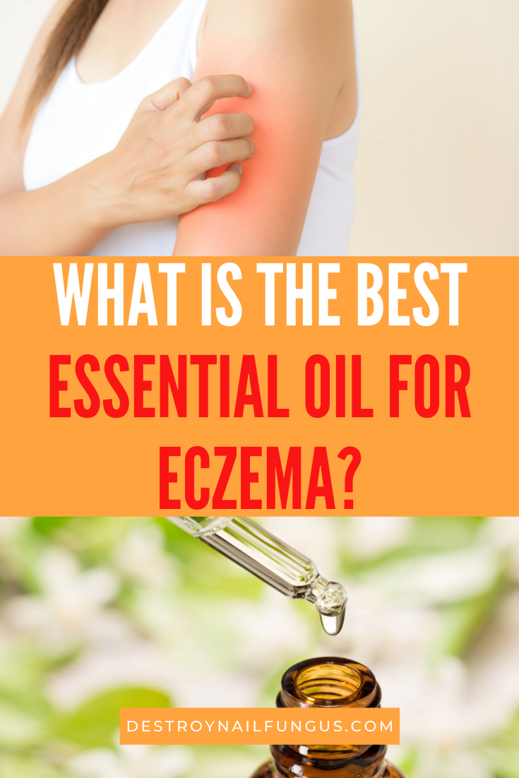 eczema essential oils