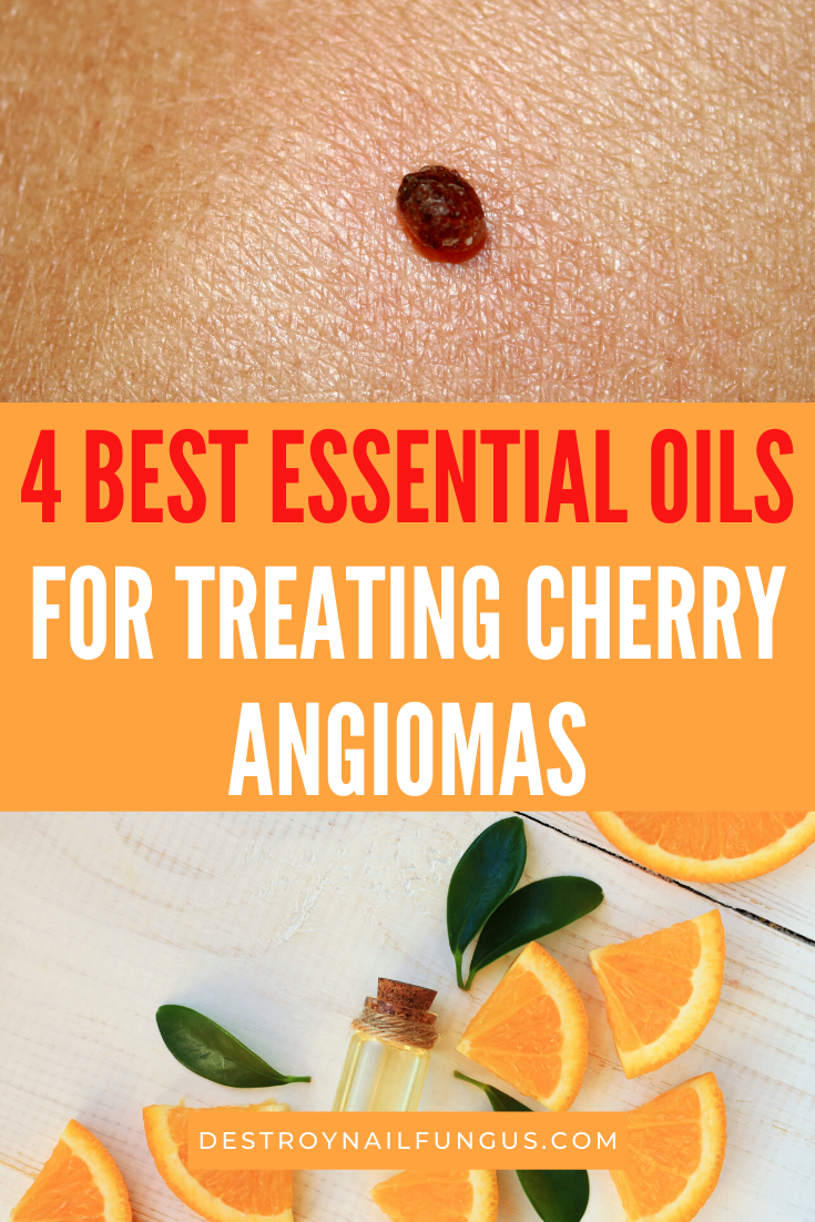 essential oils for cherry angiomas